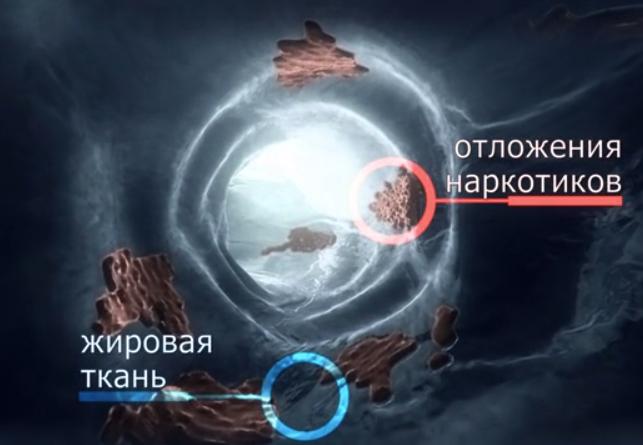 Otlozheniia_narkotikov