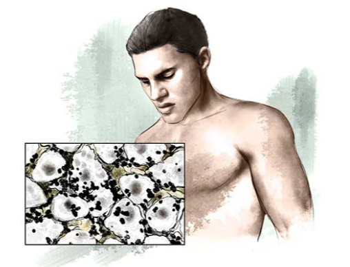 Toksiny-v-tele